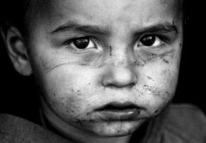 Photo of Abused beaten child